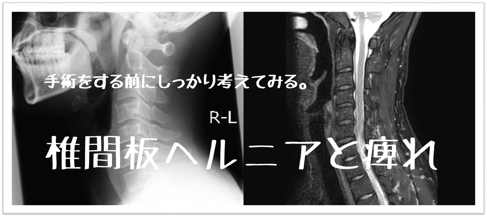整体ゆいの椎間板ヘルニアのブログ